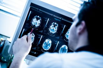 Diagnostic Radiography & Imaging BSc (Hons) Full-time at ...